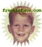 freckleface.com logo